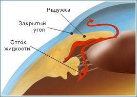 http://sc002.ucoz.ru/zakr_glaukoma.jpg